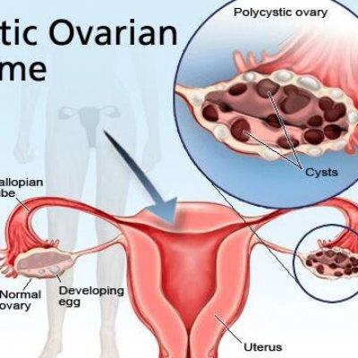 Поликистоз яичников как лечить в домашних условиях