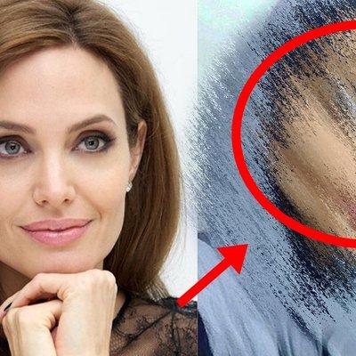 50 Pembedahan Untuk Wajah Seiras Angelina Jolie Hasilnya Amat Mengejutkan