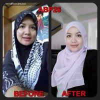 Abp 26 Produk Untuk Kesihatan Wanita Luar Dan Dalam