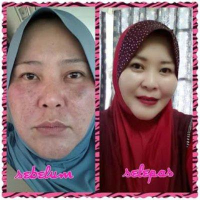 Apa Itu Korean Dermatologist Dan Rahsia Kecantikan Kulit Korea