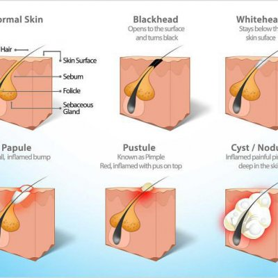 Sebaceous cyst anatomy