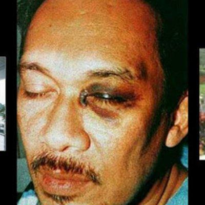 Apakah Reformis Sudah Lupa Apa Mahathir Buat Pada Anwar