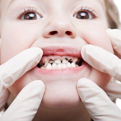 Awas Tabiat Merasa Makanan Sebelum Suap Ke Mulut Anak Boleh Sebabkan Pemindahan Bakteria