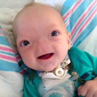 Bayi Ini Dilahirkan Tanpa Hidung Lihat Bagaimana Bayi Ini Teruskan Hidup