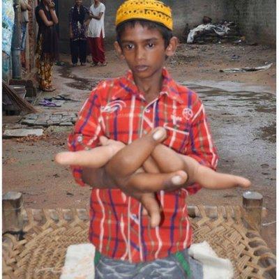 Budak Punyai Tangan Paling Super Besar Di Dunia