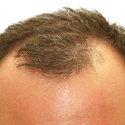 Cara Mencegah Botak Dengan Senaman
