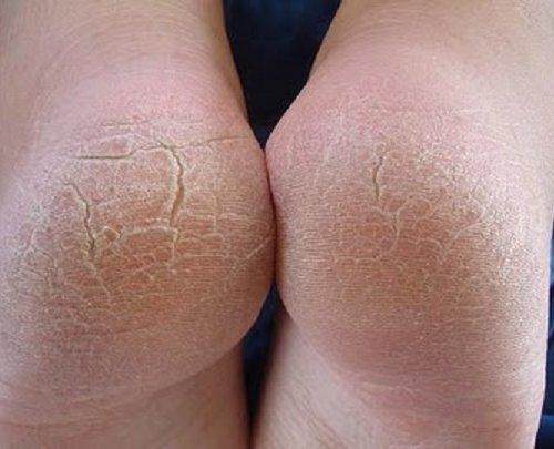 Как сделать кожу на ногах мягкой и гладкой - Pressmsk.ru