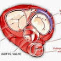 Heart Valve What Should People Must Know