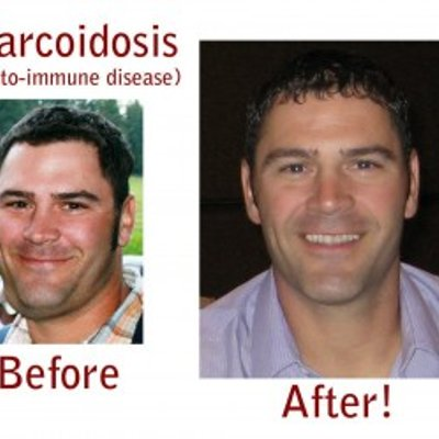 How To Reverse Sarcoidosis It Starts With Oxidative Stress