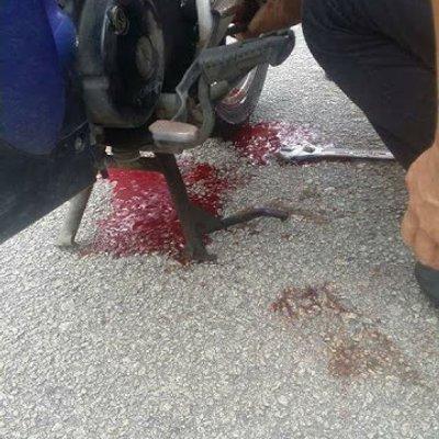 Kaki Tersepit Pada Rantai Motosikal