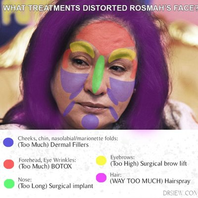 Kecantikan Rosmah Didedahkan Oleh Doktor Kosmetik