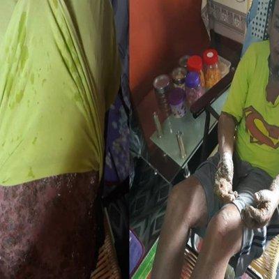 Mohon Bantuan Kewangan Atasi Kesengsaraan Kulit Kegatalan Merekah Merepuh Dan Bernanah Tanpa Di Ketahui Puncanya