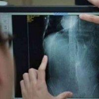 Najis Seberat 5kg Punca Seorang Lelaki Derita Sakit Perut Dan Sembelit Selama 10 Tahun