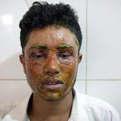 Pemuda Ini Disiram Air Keras Oleh Gadis 16 Tahun Karena Menolak Cintanya