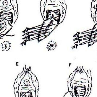 Pengertian Indikasi Dan Jenis Episiotomi Pada Persalinan