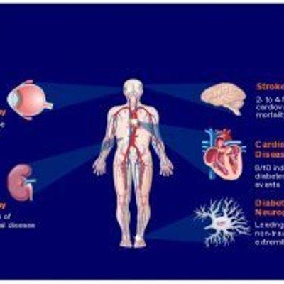 Penyakit Kencing Manis Ubat Dan Cara Merawat
