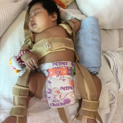Sedih Tengok Bayi 3 Bulan Patah Tulang Paha Ayah Mangsa Mohon Keadilan Untuk Anaknya