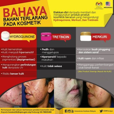 Terkini Lagi Produk Kosmetik Yang Di Kesan Oleh Kkm Mengandungi Racun Berjadual