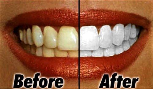 Tips Petua Putihkan Gigi Kuning Guna Bahan Semulajadi Saja Heboh