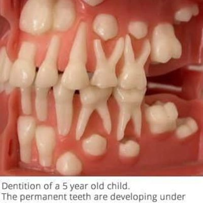 Umur 2 Tahun Gigi Dah Rongak Sebab Tu Kena Elak Botol Susu Semalaman Dalam Mulut Anak