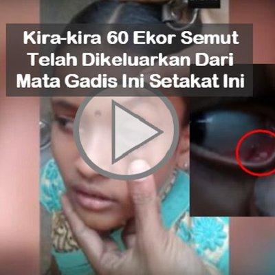 Video Misteri Berpuluh Semut Keluar Dari Mata Budak Perempuan