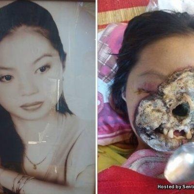 Wajah Ngeri Gadis Vietnam Musnah Dimakan Kuman