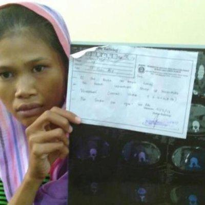 Wanita Ini Mengadu Selalu Sakit Selepas Xray Doktor Terkejut Buah Pinggang Wanita Ini Dicuri